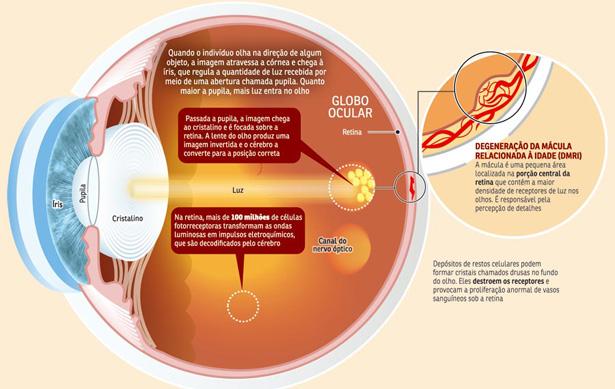 Doença macular relacionada à idade
